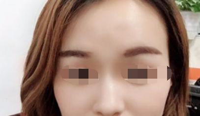 做了激光祛斑 我脸上的雀斑都不见了真的太开心了