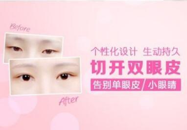 北京雍禾美度整形医院<font color=red>切开双眼皮</font>的优点有哪些  什么人能做