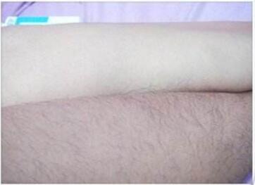 朝阳康韵整形医院激光手臂脱毛效果好吗  有哪些注意事项