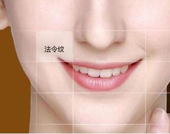 脸上法令纹怎么去 重庆爱思特整形医院激光去法令纹效果