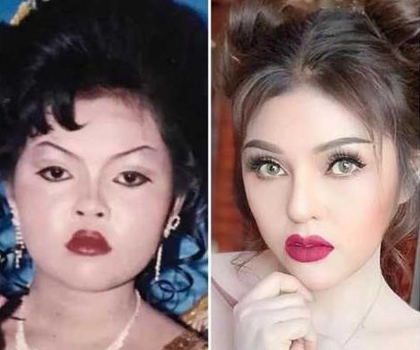 柬埔寨美女整容前后的对比照 迎来桃花运收获爱情