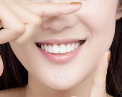 冷光美白牙齿多少钱 南京口腔医院效果可提高5-14个vita色阶