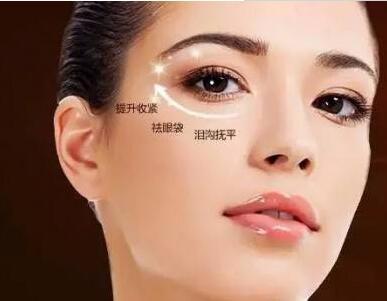 有眼袋怎么办 合肥福华整形医院超声去眼袋能维持多久