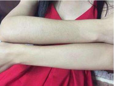 保定雷胜辉整形医院手臂激光脱毛对皮肤有伤害吗  过程解析