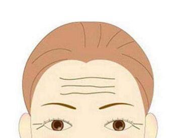 重庆妮威整形医院激光去除抬头纹效果怎么样呢  有哪些优点