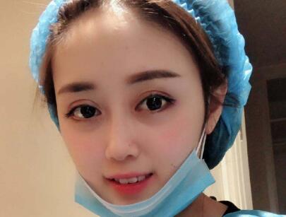 北京双眼皮手术价格是多少 会不会很贵