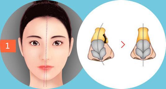 芜湖华山医院整形科歪鼻整形多少钱 矫正鼻子手术安全吗