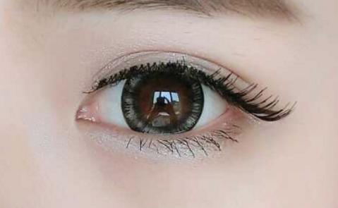 曲靖靖美整形医院眼袋抽脂手术多少钱 主要针对中青年人群