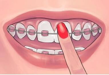 丹东诗莉花整形医院牙齿矫正的特点有哪些呢  术后怎么护理