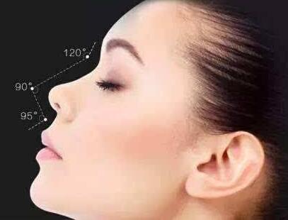 衡阳美莱隆鼻怎么样 假体隆鼻会留疤吗