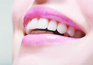 西安圣贝口腔整形医院门牙烤瓷牙 让牙齿更美观