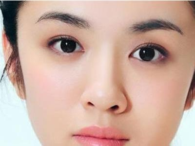 长眼袋怎么消除 广州南珠整形医院<font color=red>激光去眼袋</font>维持多久