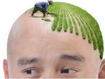 辽宁安琪美整形医院头发种植具有哪些优势  正确护理方法