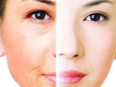 脸上的皮肤松弛怎么办 北京禾力康整形医院面部提升术多少