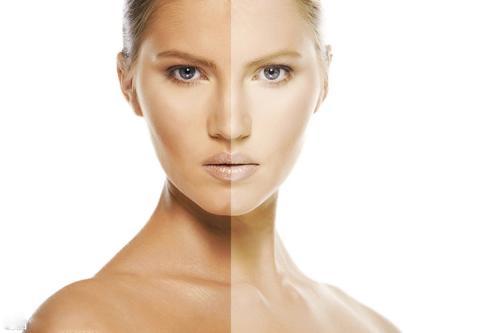 光子嫩肤美白效果能维持多久 光子嫩肤术后如何保养
