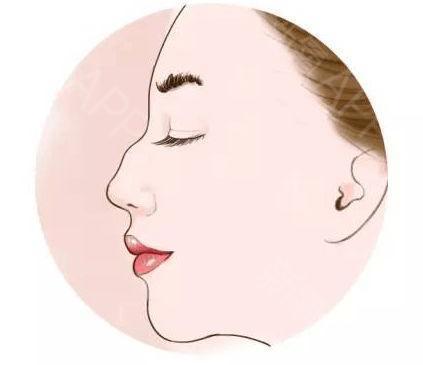 驼峰鼻怎么整形 扬州第一人民医院整形科鼻部畸形矫正价格