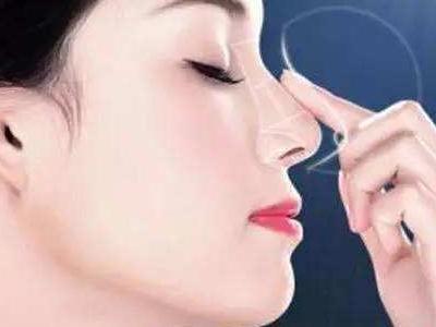 芜湖鼻子整形哪家医院专业 鼻梁缩窄术需要多少钱