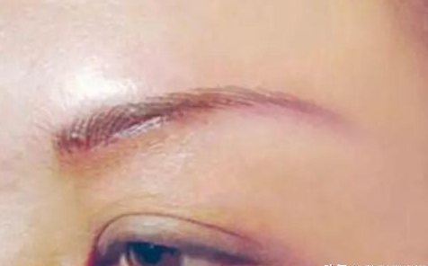40岁女人提眉毛 想要更自然护理很重要