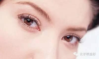 秦皇岛念奴娇整形医院双眼皮手术多少钱 多久恢复自然