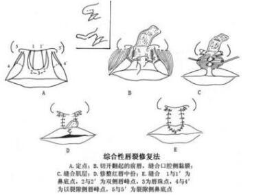 四平王清纯整形医院唇裂修复的优势  术后护理怎么做
