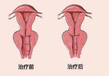 南京万艾特整形医院阴道紧缩术的优势  安全性怎么样
