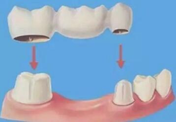 鄂尔多斯百达丽整形医院做烤瓷牙的优点有哪些  会有危害吗