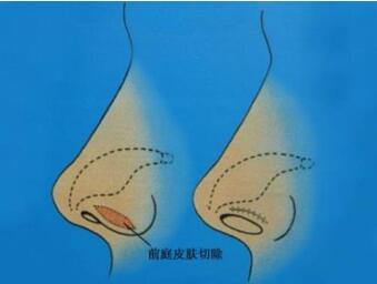 沈阳二0二医院整形科鼻翼缩小术有哪些特点  哪些人不能做