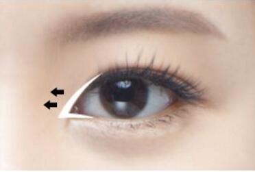 北京叶美人整形医院开眼角手术有什么特点  有哪些并发症