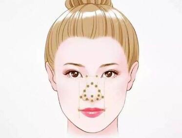 上海法思荟整形医院鼻部再造术的效果好不好  安全性怎么样