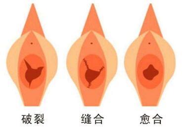 佳木斯李景林整形医院处女膜修复术有哪些优势呢