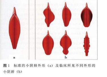 南京华美整形医院小阴唇肥大矫正手术的优点  有没有危险