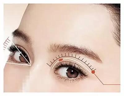 梅州切双眼皮的费用 哪家整形医院专家技术比较好