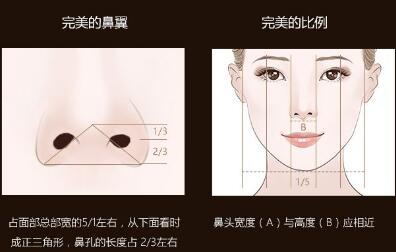 沈阳鑫美神整形医院鼻翼缩小的效果怎么样  安全性高吗