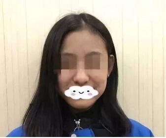 重庆康和美医院整形科隆鼻修复效果怎么样  还你精彩人生
