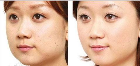 长沙申美医疗整形医院韩式无痕去眼袋 明眸大眼亮起来