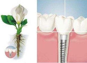 南京口腔医院整形科牙种植价格 能维持多久