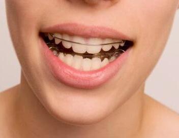 宿迁口腔医院整形科矫正牙齿价钱 牙齿矫正最佳年龄