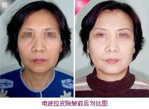 惠州元辰美容整形医院地址 电波拉皮手术费用
