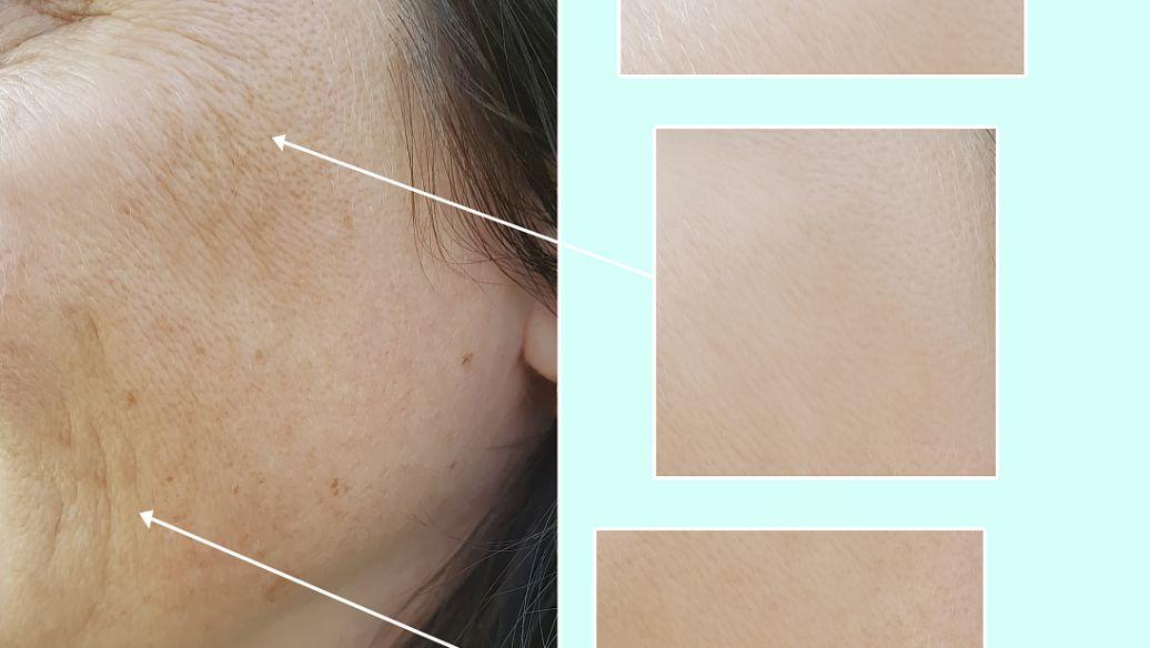怎样祛除伤疤 佛山华美整形激光除疤 拒绝印记