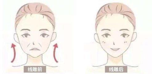 吉州做面部提升术那种效果好 雕线提升能维持多久