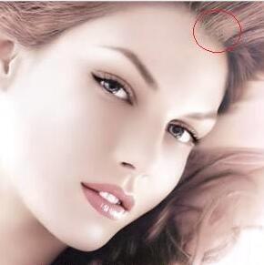 美人尖种植价格贵不贵 美人尖种植有没有风险 会不会留疤