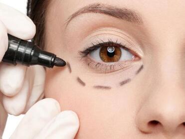 南京福华整形医院吸脂祛眼袋多久恢复  有什么特点呢