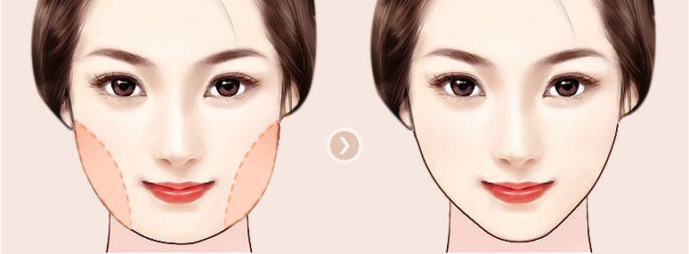 南充达芬奇美容整形医院韩式瘦脸 拥有小V脸 你也是女神