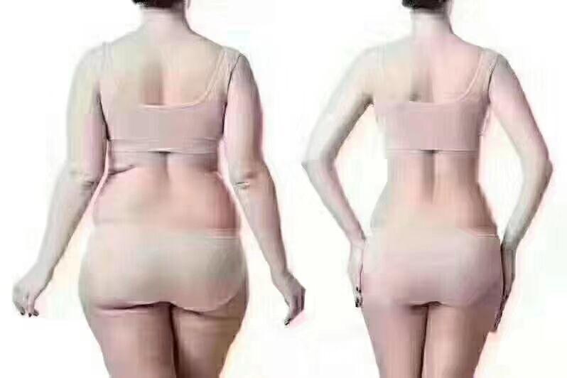 南通美贝尔美容整形医院吸脂减肥方法好吗