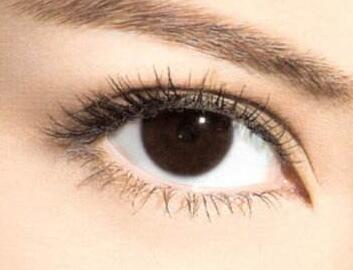 怎么做双眼皮 南昌禾丽整形医院全切双眼皮多久能恢复