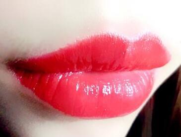 南通维多利亚整形医院厚唇改薄有哪些优点呢  手术会反弹吗