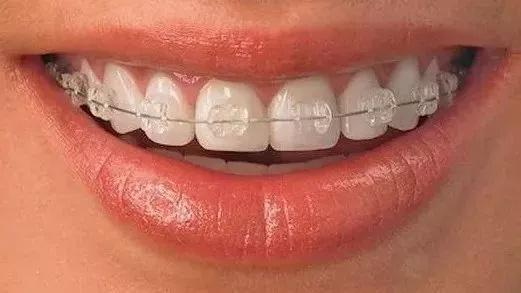 陶瓷自锁托槽怎么样  北京盖德口腔整形牙齿矫正安全又舒适