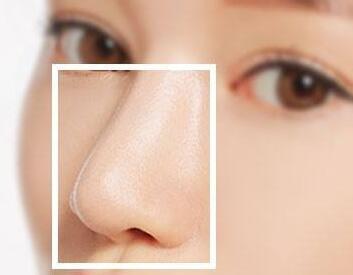 鼻梁增高的方法哪种好 徐州华美自体软骨隆鼻效果自然吗