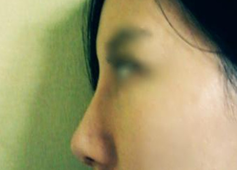 天津美联致美整形医院做耳软骨垫鼻尖手术时间是多久