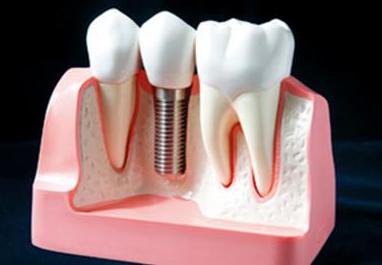 重庆颜语医疗美容整形医院做种植牙费用大概需要多少